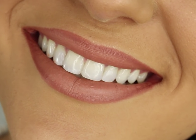 healthy_smiling_teeth
